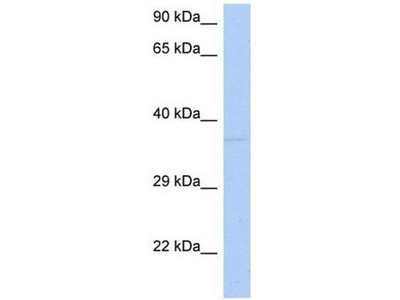 anti-DRG1 antibody