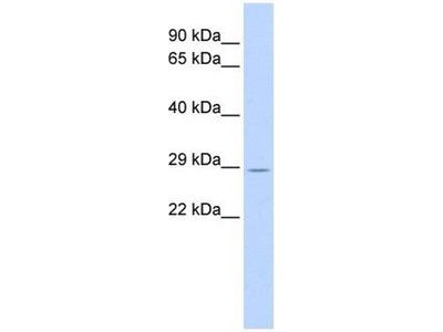 anti-TRIM55 antibody
