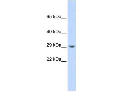 anti-KCNN2 antibody