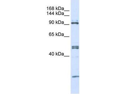 anti-AARS antibody