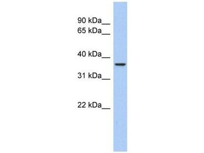 anti-AQP10 (Aquaporin 10) antibody
