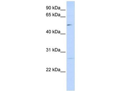 anti-PPM1M antibody