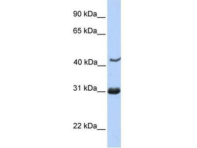 anti-nucleoporin 35kDa (nucleoporin 35) antibody