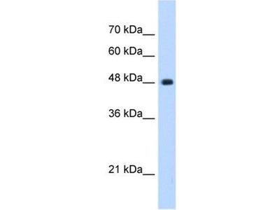 anti-SUN2 antibody