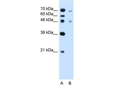 anti-Zinc Finger, FYVE Domain Containing 27 (ZFYVE27) (C-Term) antibody