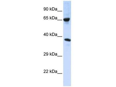 anti-ATAT1 (C6orf134) antibody