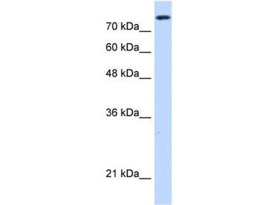 anti-Non-SMC Condensin I Complex, Subunit H (NCAPH) (C-Term) antibody