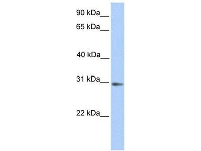 anti-Abhydrolase Domain Containing 13 (ABHD13) antibody