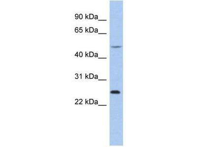 anti-chymotrypsinogen B1 (CTRB2) antibody