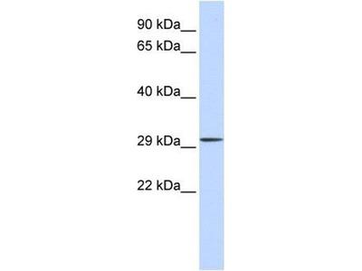 anti-C1orf111 (chromosome 1 open reading frame 111) antibody