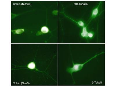Cofilin Phospho-Regulation Antibody Sampler Kit
