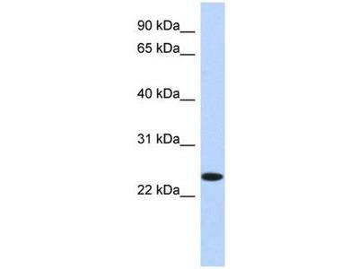 anti-Na+/K+ Transporting ATPase Interacting 4 (NKAIN4) (N-Term) antibody