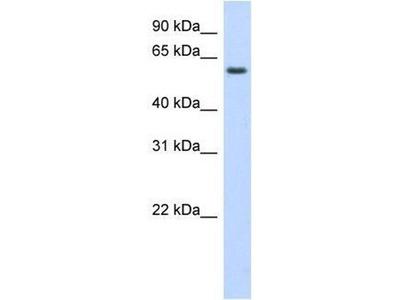 anti-KLHL42 Antibody