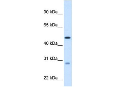 anti-Enoyl CoA Hydratase, Short Chain, 1, Mitochondrial (ECHS1) (C-Term) antibody
