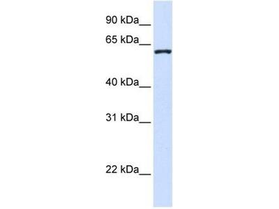 anti-DCAF12 antibody