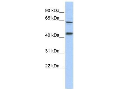 anti-KLHL8 antibody
