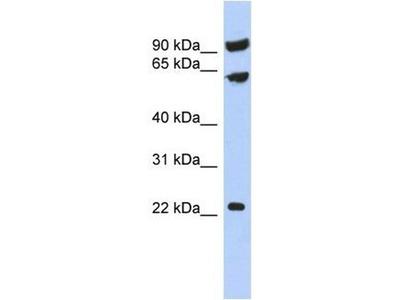 anti-TIGD3 Antibody