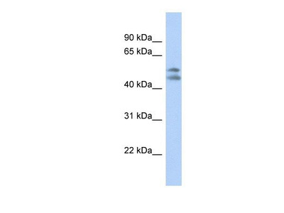 anti-Platelet-Activating Factor Acetylhydrolase 1b, Regulatory Subunit 1 (45kDa) (PAFAH1B1) (N-Term) antibody