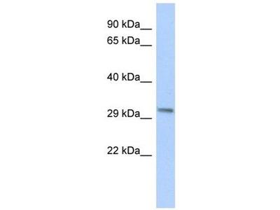 anti-Chromosome 8 Open Reading Frame 84 (C8orf84) (Middle Region) antibody