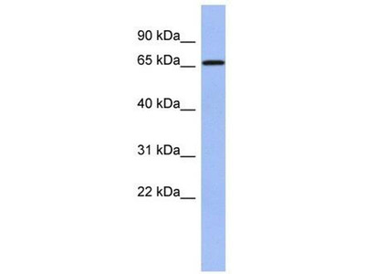 anti-A1CF antibody