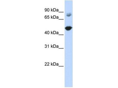 anti-TBC1D16 antibody
