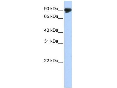 anti-TMTC4 antibody