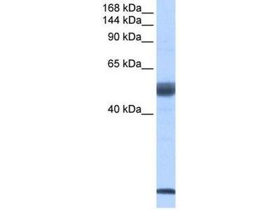 anti-Pre-MRNA Branch Site Protein p14 (SF3B14) (Middle Region) antibody