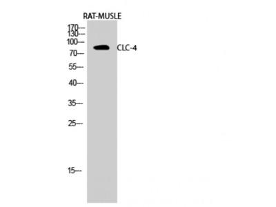 Anti-CLC-4 antibody (STJ92324)