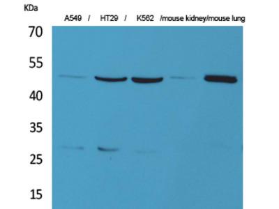 Anti-GDI-2 antibody