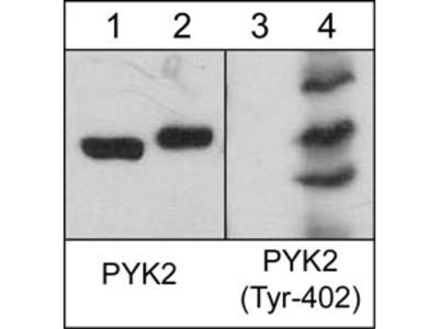 PYK2 (Tyr-402), phospho-specific Antibody