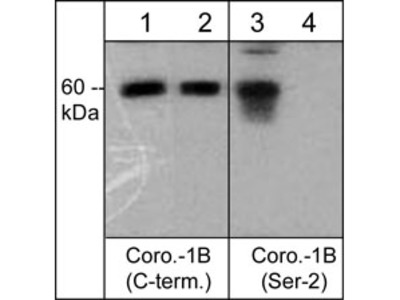 Coronin-1B (C-terminus) Antibody