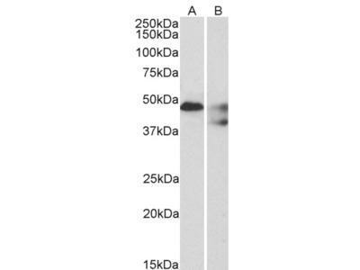 HTR1B / 5-HT1B Receptor Antibody