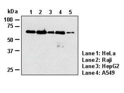 Anti-p62 (SQSTM1) (Human) mAb