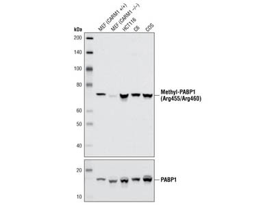 Asymmetric-Methyl-PABP1 (Arg455/Arg460) (C60A10) Rabbit mAb