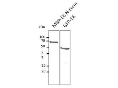 HPV11 E6 Antibody