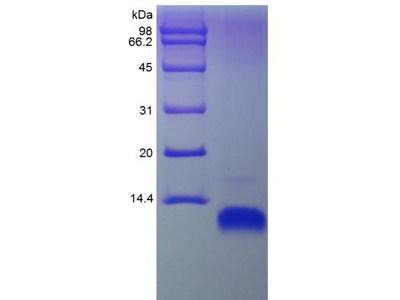 CCL22 / MDC Protein