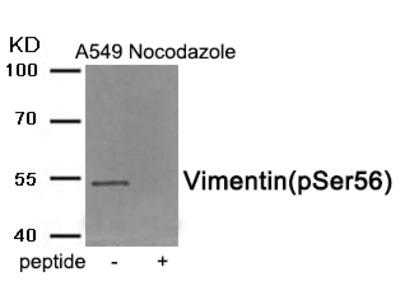 anti Vimentin pSer56