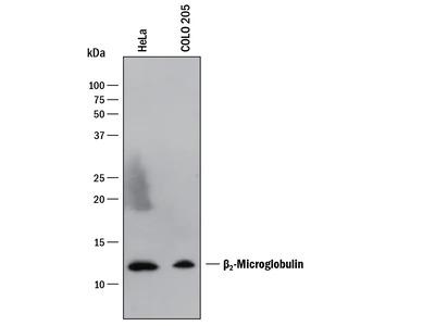 Human beta 2-Microglobulin Antibody