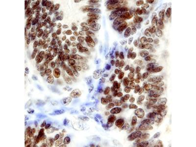 Ets-1 Antibody