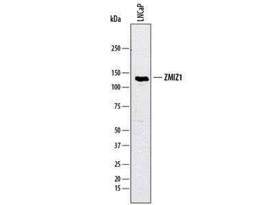 ZMIZ1 / Zimp10 Antibody