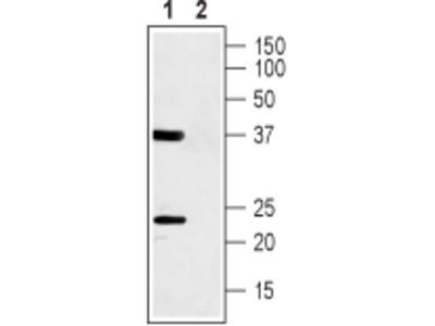 Anti-CACNG1 (extracellular) Antibody