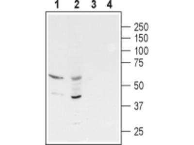 Anti-GABA(A) rho3 Receptor (GABRR3) (extracellular) Antibody