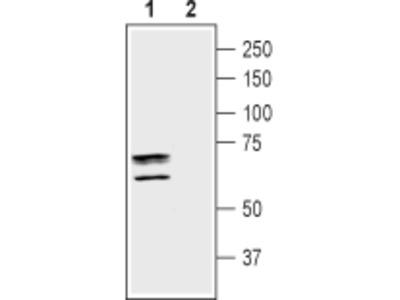 Anti-Taurine Transporter (SLC6A6) Antibody