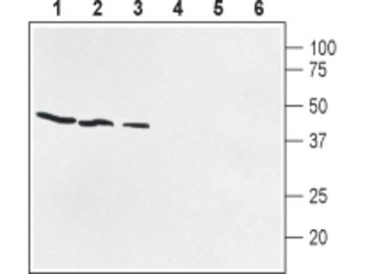 Anti-Prostaglandin E Receptor EP1 (PTGER1) (extracellular) Antibody