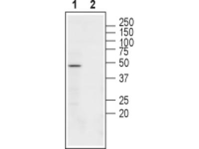 Anti-Nicotinic Acetylcholine Receptor beta3 (CHRNB3) (extracellular) Antibody