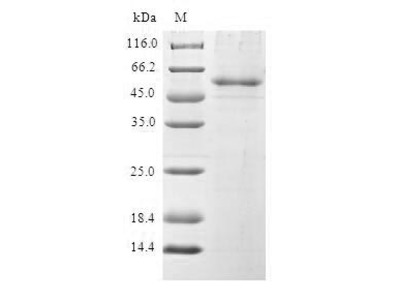 Recombinant Human Pre-mRNA-splicing factor SPF27 (BCAS2)