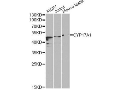 CYP17A1 Polyclonal Antibody