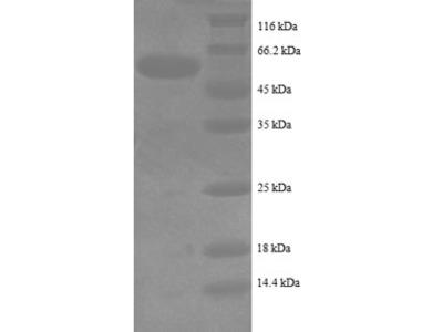 Recombinant Human Intestinal-type alkaline phosphatase