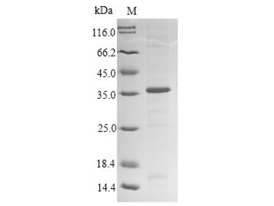 Recombinant Human Fc receptor-like protein 6 (FCRL6)