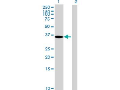 TBC1D3 Antibody